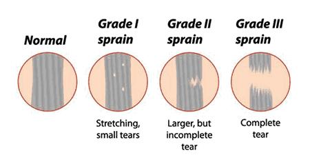 sprain-types