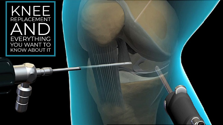 Knee Replacement and Everything You Want to Know About it