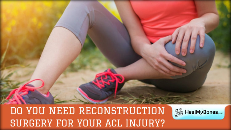 Do You Need Reconstruction Surgery for Your ACL Injury?