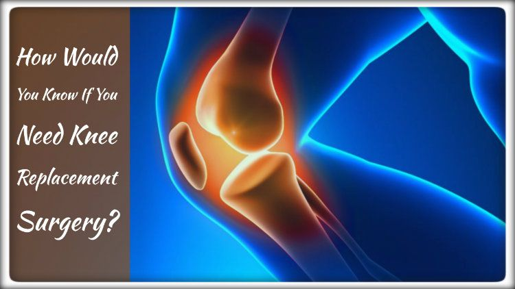 How Would You Know If You Need Knee Replacement Surgery?