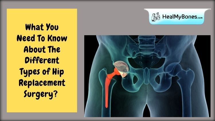 What You Need To Know About The Different Types of Hip Replacement Surgery?