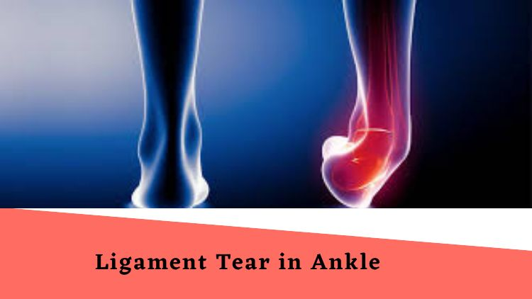 Sustained Complete Ligament Tear in Ankle: Now What?