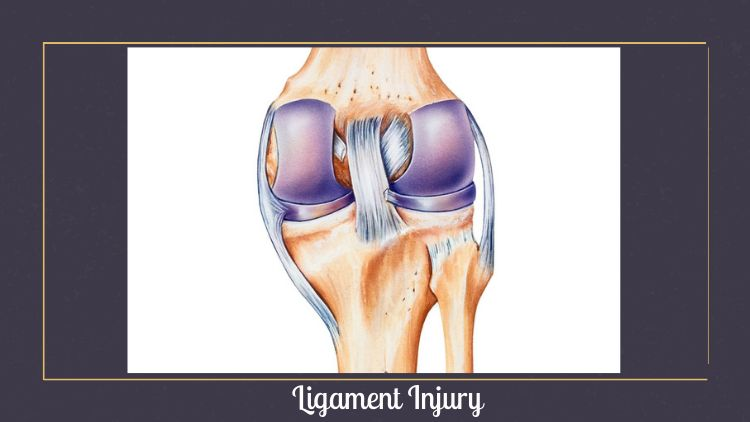 ligament injury