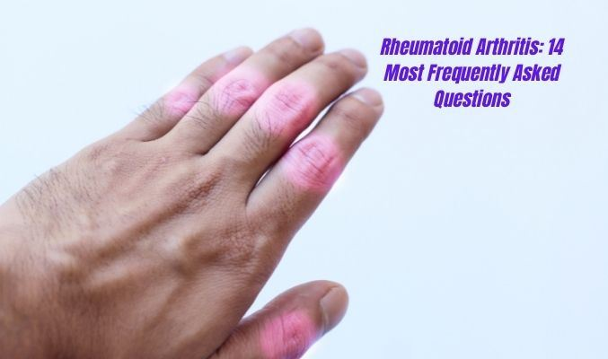 Rheumatoid Arthritis: 14 Most Frequently Asked Questions (Part 1/3)